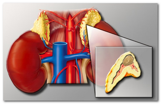 Феохромоцитома - опухоль надпочечников: причины и клиника