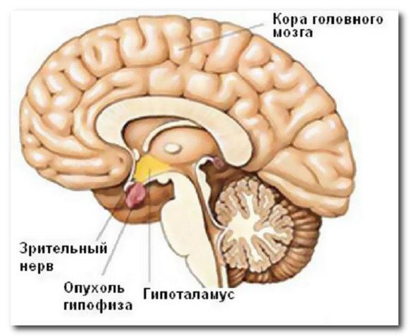 избыток пролактина симптомы