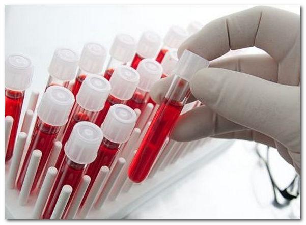 анализ на гормоны щитовидной железы как сдавать