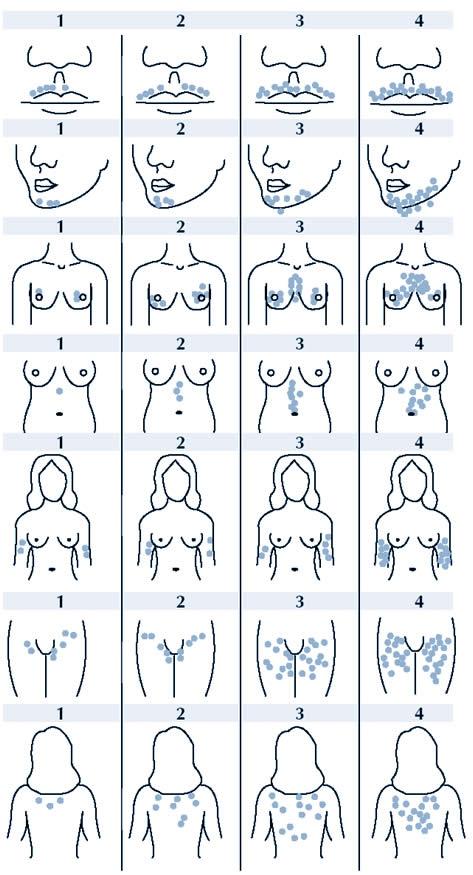 Почему у женщины на груди растут волосы