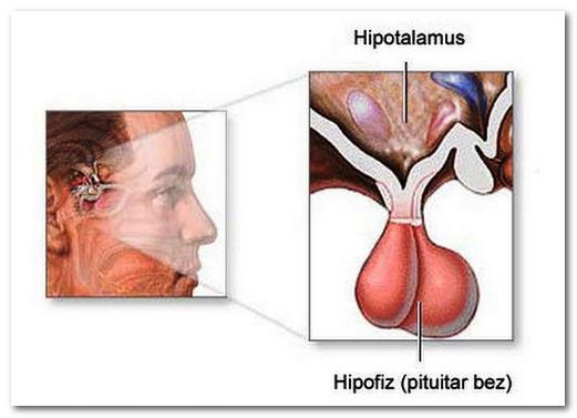 Синдром гиперпролактинемии: симптомы у мужчин и женщин