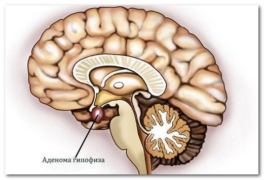 Пролактинома - аденома гипофиза, синтезирующая пролактин