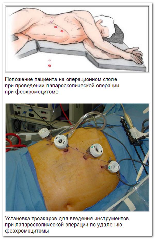 Заболевания опорно-двигательного аппарата у детей нарушение осанки