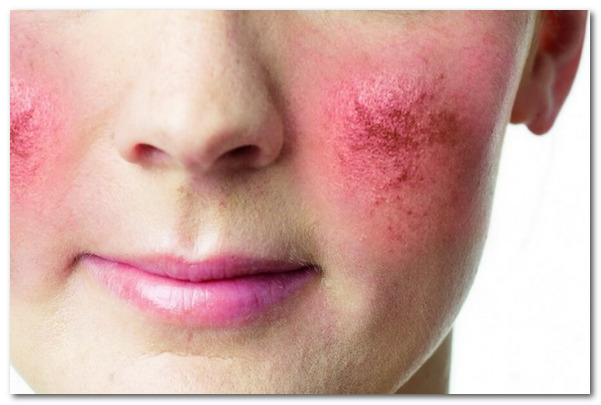 Какие заболевания эндокринной системы могут вызывать кожные проявления?