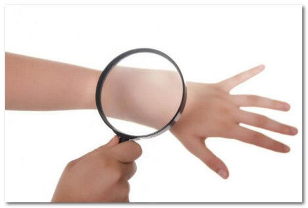 Как эндокринные заболевания приводят к поражению кожи?