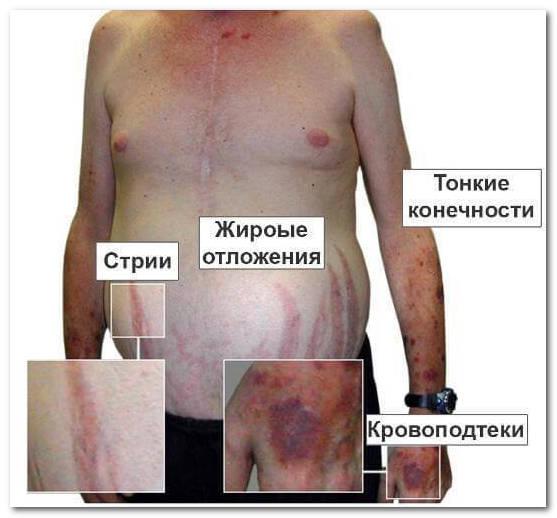 Клинические проявления на коже при синдроме Иценко-Кушинга